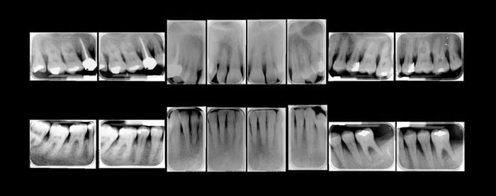 status radiografico