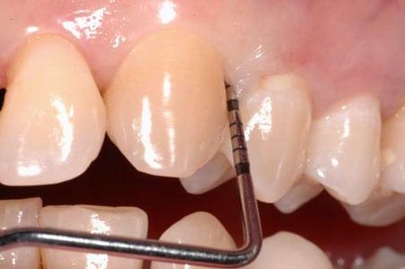 sondaggio-parodontale
