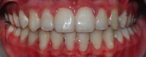 ortodonzia-oregia-17