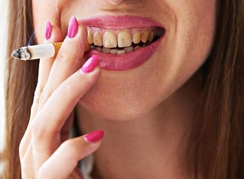 rischio sigarette